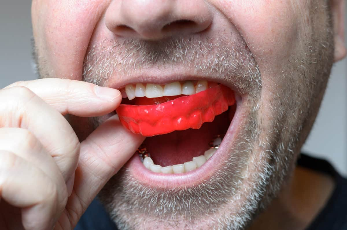 5 Things You Need To Know About Mouth Guards