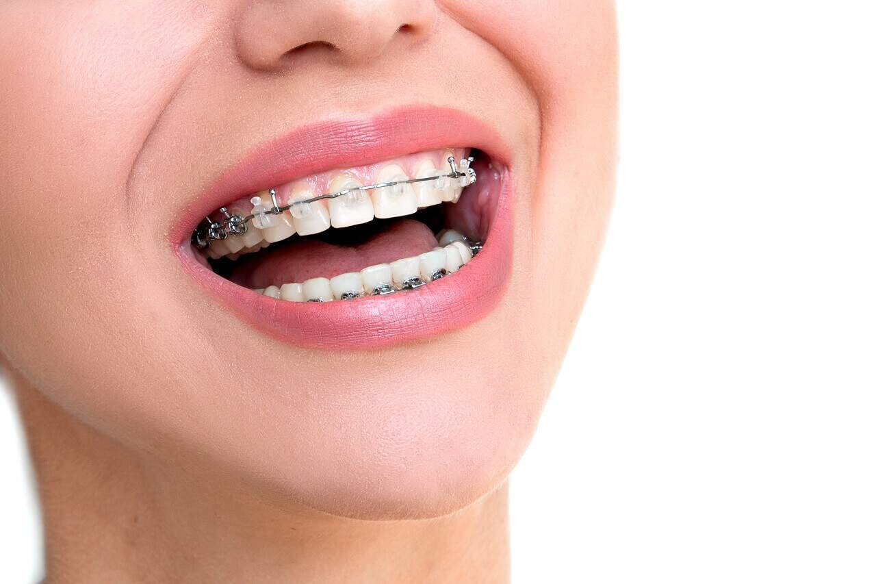 Things About Ceramic Braces
