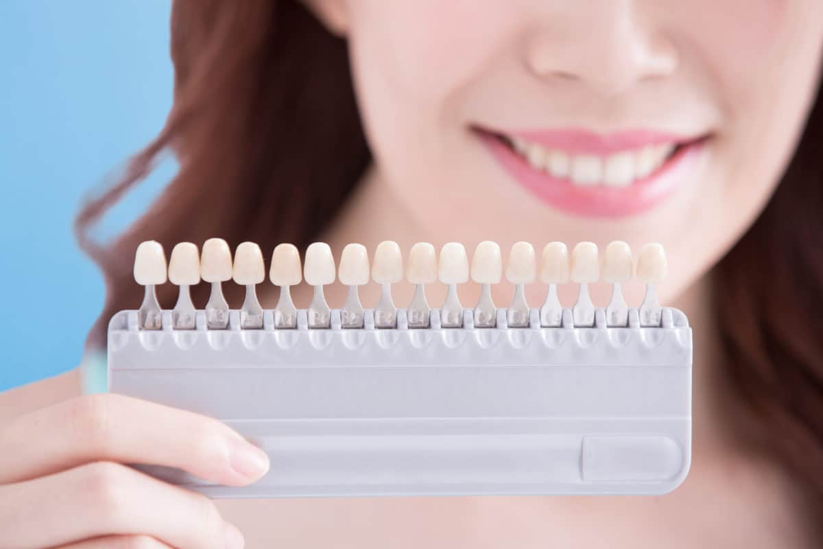 The 5 Teeth Whitening Myths You Should Not Believe
