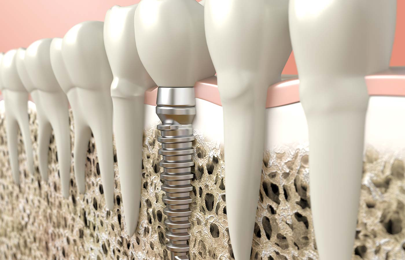 10 benefits of dental implants
