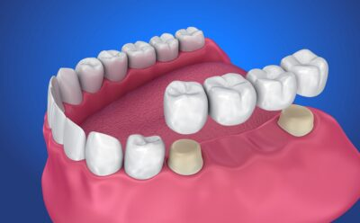 how patients can replace missing teeth